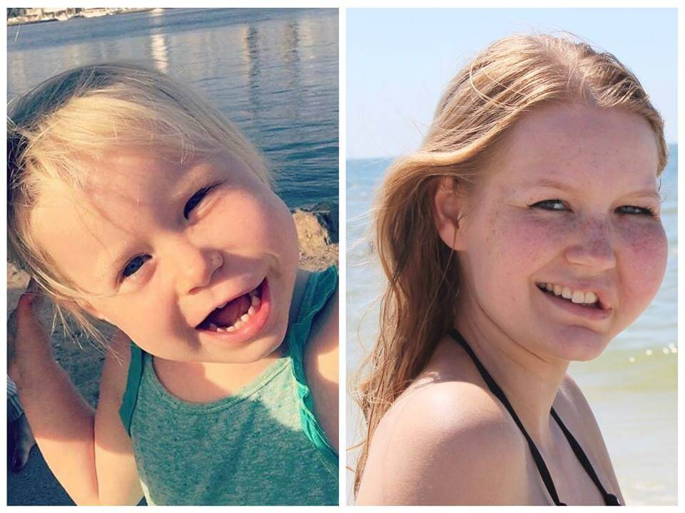 3 vs 23 - wilma and vela - fil - facial infiltrating lipomatosis