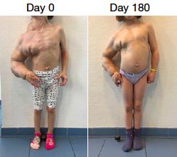 Voor en na BYL719 / Alpelisib behandeling