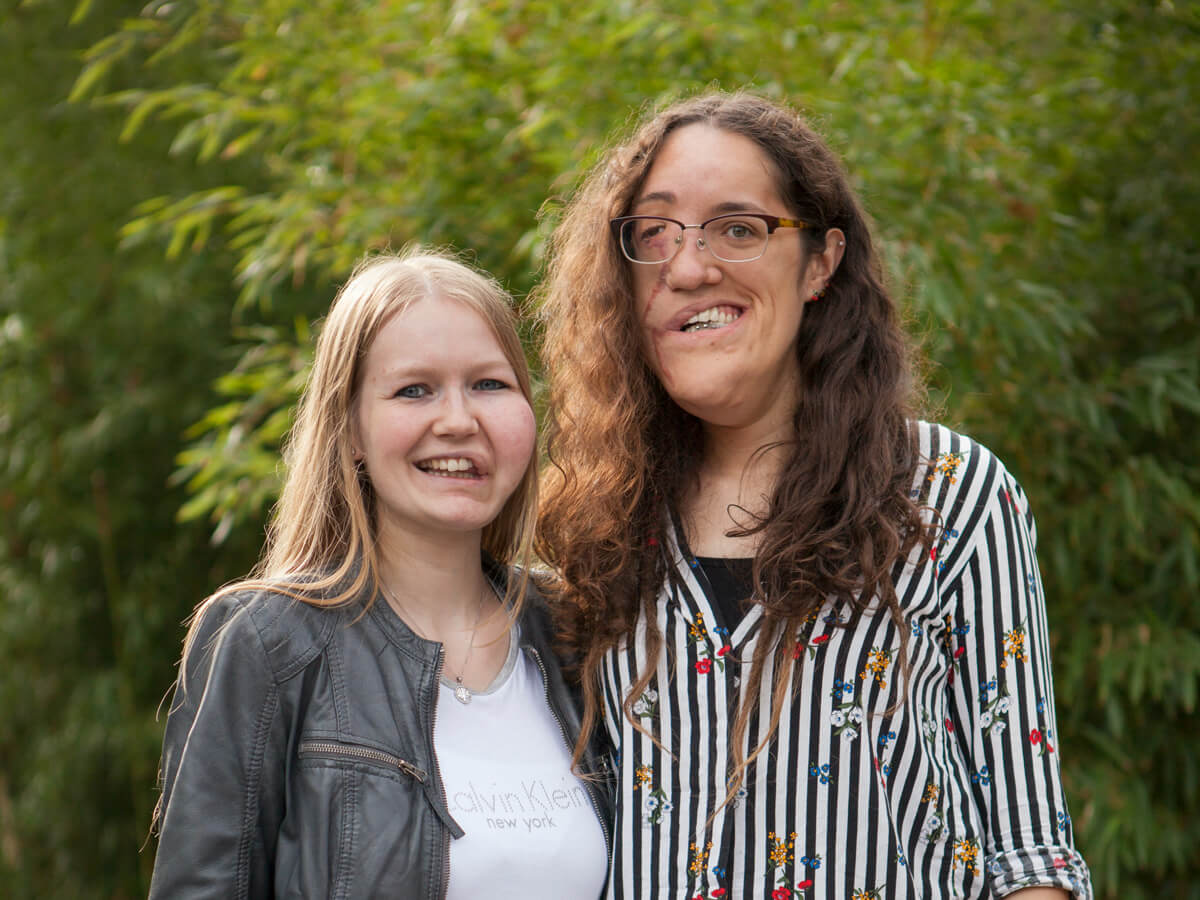 Wilma en Janneke op de Hevas ontmoetingsdag Rhenen - Facial Infiltrating Lipomatosis, a PIK3ca Related Overgrowth condition - PROS syndrome