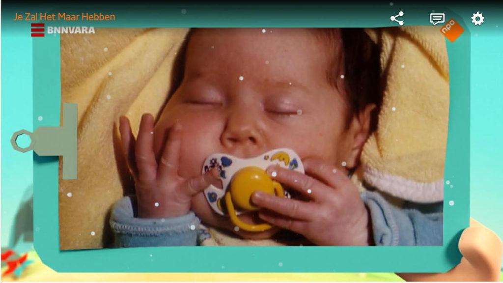 Baby Janneke bij Je Zal Het Maar Hebben met Facial Infiltrating Lipomatosis, a PIK3ca Related Overgrowth condition - PROS syndrome