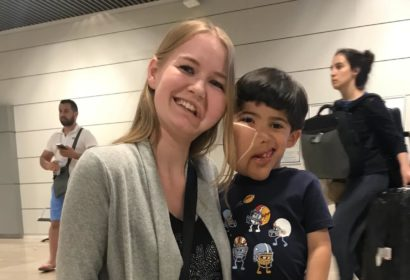 Meeting samuel in Madrid - facial infiltrating lipomatosis